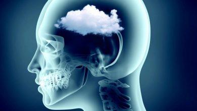 Photo of 'Niebla mental': la misteriosa secuela del COVID-19